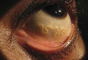 паразит в организме человека
