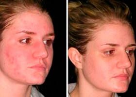 лицо до и после применения