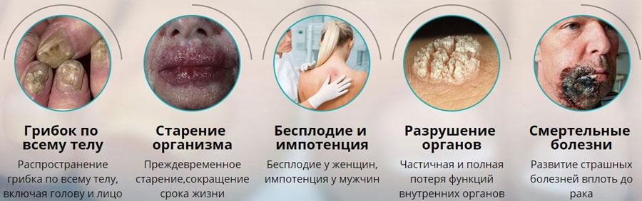 последствия не лечения грибка