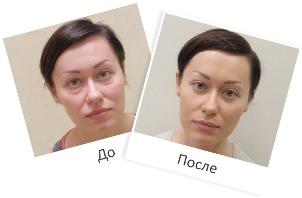 До и после применения Нефертити