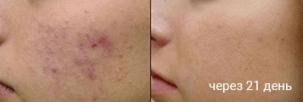 До и после применения геля