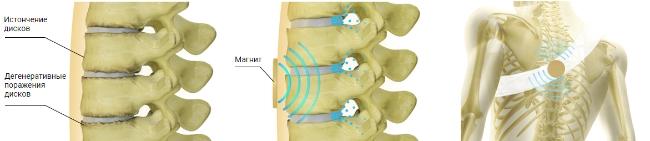 магнитотерапия при болезни суставов