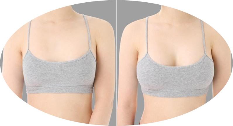 Быстрое увеличение груди без операций