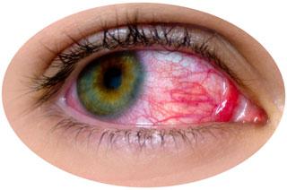 Болезнь глаз