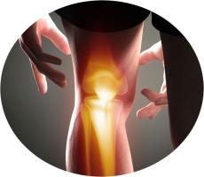 восстановление суставных тканей