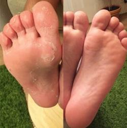 эффект использования носочков